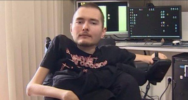 spiridonov vollunteers in the human head transplant