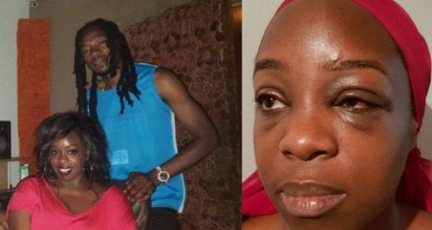 Katatumba Was Badly Beaten Up With her Jamaican Boyfriend Kuzi