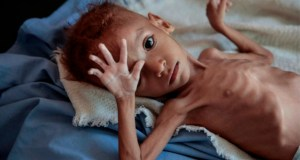 yemen starving children
