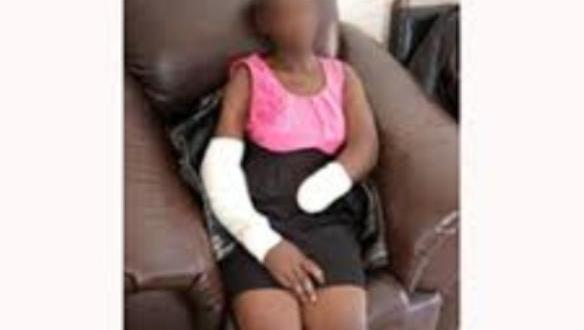 Man Chops Off Girlfriend's Hand For Rejecting His Marriage Proposal