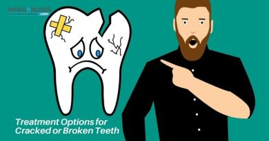 Treatment Options for Cracked or Broken Teeth