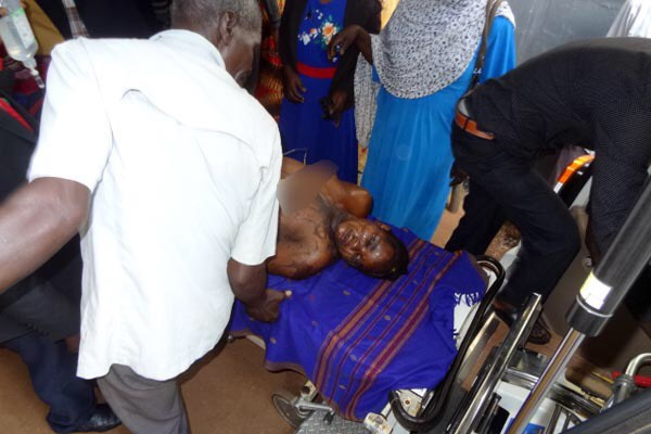 Ugandan Woman Lands In Hospital After Her Husband Stormed Her Parents' Home And Poured Acid On Her