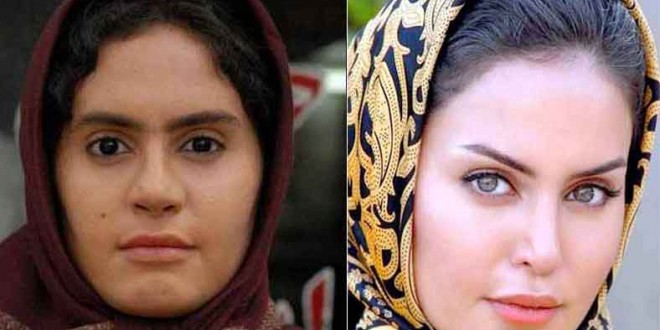 Iranians Actresses Before And After Plastic Surgery