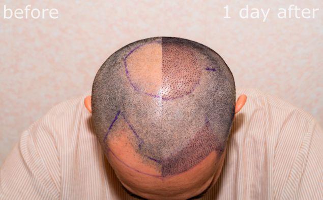 Σε μια συνεδρία εμφύτευσης μαλλιών κατά μέσο όρο τοποθετούνται περίπου 3.000 τρίχες. Ο Ινδός επιχειρηματίας ζήτησε 9.000 μοσχεύματα