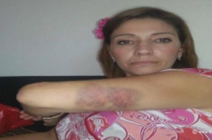 A scar is visible on the domestic violence victim's arm in a photo published by LBCI | Source: LBCI