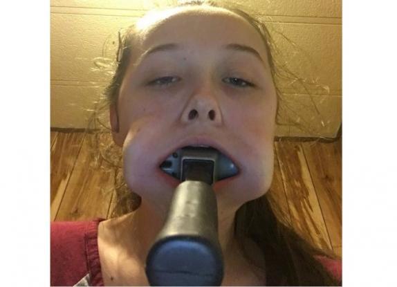 Έφηβη σφήνωσε σφυρί στο στόμα της και δεν μπορούσε να το βγάλει! Ο απίστευτος λόγος για τον οποίο το έκανε (Photos)