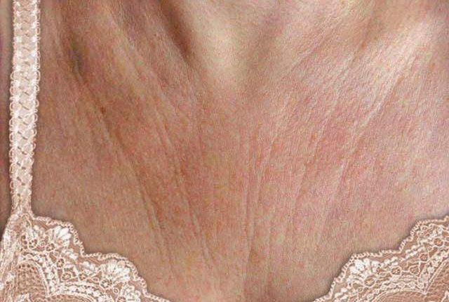 7 Τρόποι για να καταπολεμήσετε τις ρυτίδες στο στήθος