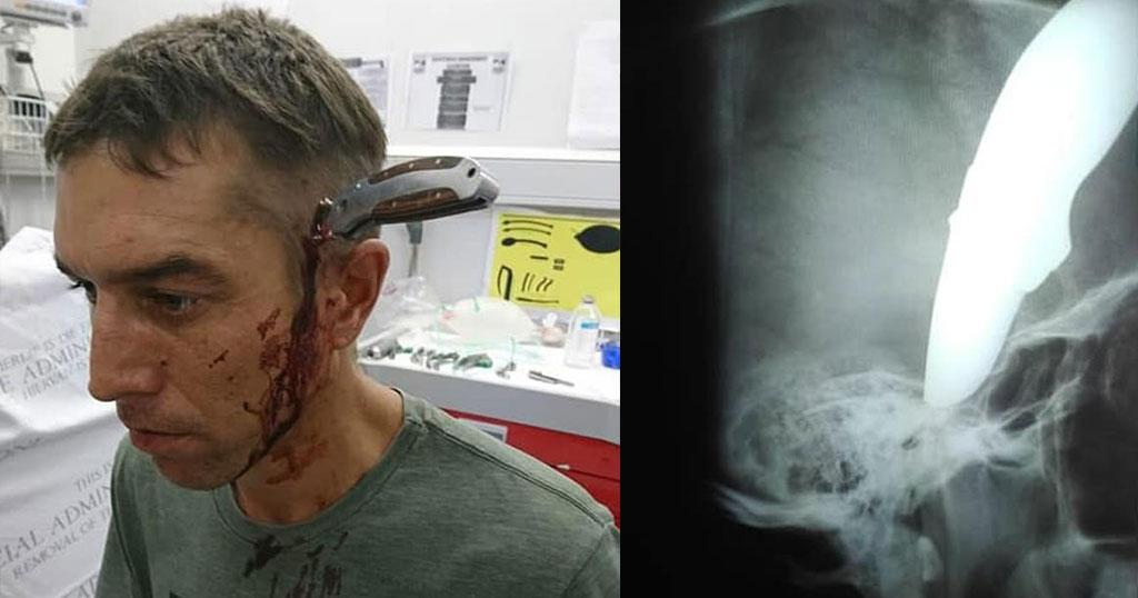 Πήγε με το ποδήλατο, ήρεμος με καρφωμένο μαχαίρι στο κεφάλι στο νοσοκομείο μετά από επίθεση ληστών