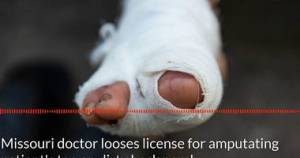Missouri Doctor Loses License for Amputating Patient's Gangrenous Toe on Dirty Back Porch