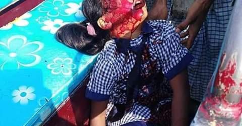 কুতুবদিয়ায় সড়ক দূর্ঘটনায় স্কুল ছাত্রী নিহত