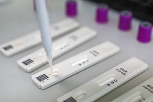 Пациент с COVID-19 сможет лечиться на дому только в отдельной комнате