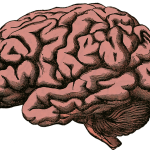African Americans Are High-Risk Group for Brain Aneurysm Ruptures