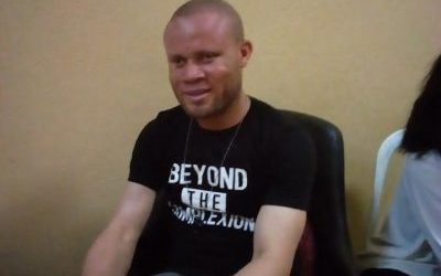SPECIAL INTERVIEW: Show love to persons with albinism, not pity- Udechukwu