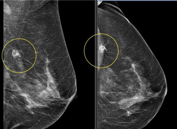Znalezione obrazy dla zapytania mammografia zdjęcia