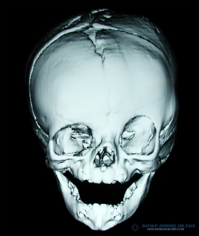 Coronal CT AP 1