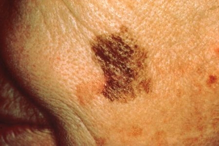 Как выглядит рак кожи лица фото – 33 шт. / nezdorov.com