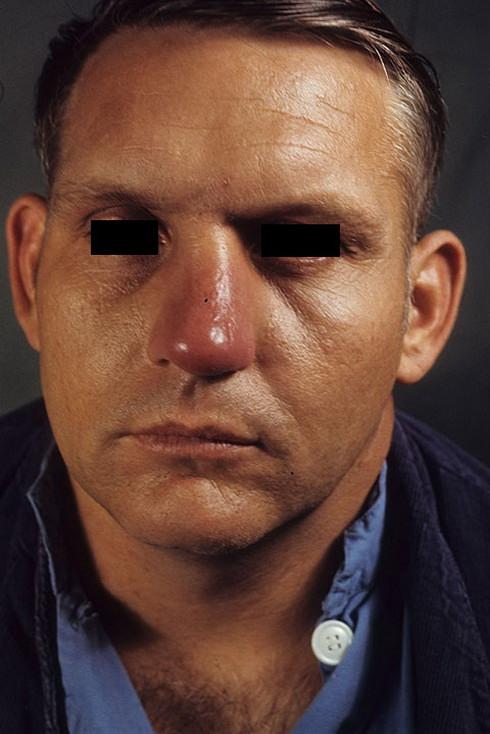 Заболевание рожа на лице фото – 21 шт. / nezdorov.com