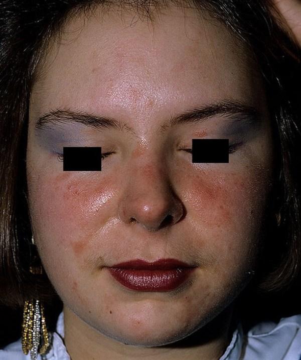 Как выглядит аллергический контактный дерматит у детей ...