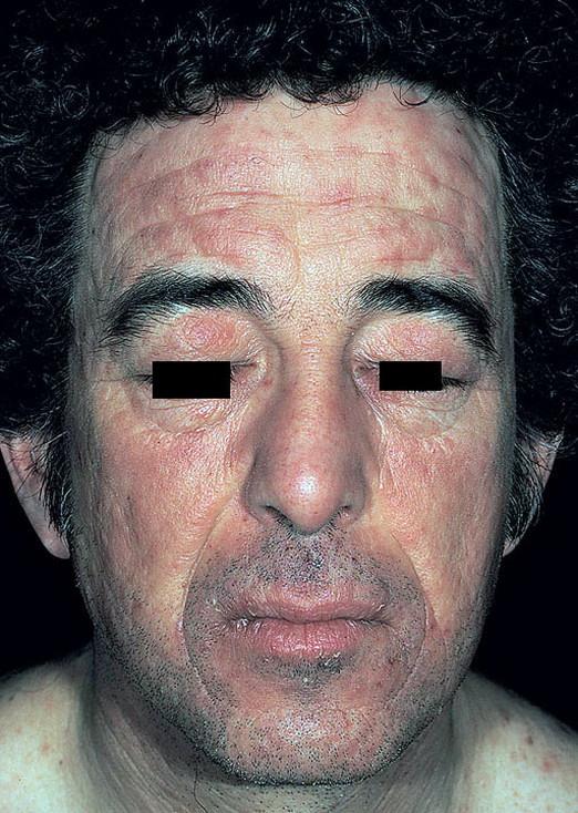 Как выглядит контактный дерматит у взрослых фото – 156 шт ...