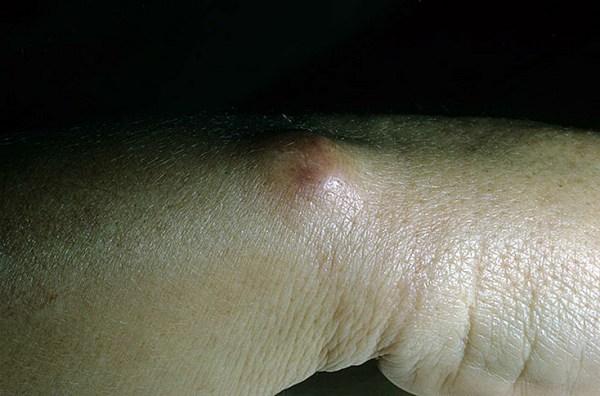 Как выглядит дерматофиброма кожи фото – 135 шт. / nezdorov.com
