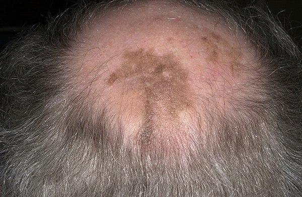 Как выглядит старческий кератоз кожи фото – 639 шт ...