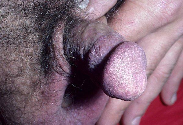 Как выглядит красный лишай на головке члена фото – 11 шт ...