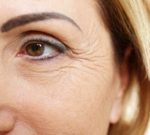 Sunflower Oil Benefits Reduces Wrinkles