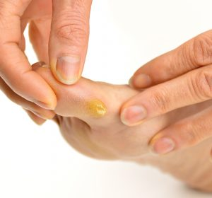 Castor Oil Benefits for Soften Calluses