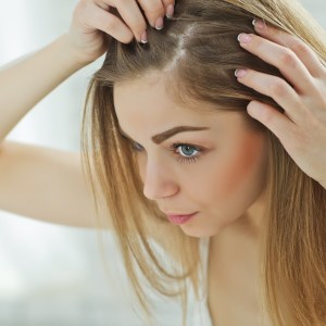 Avocado Oil Benefits for Dandruff