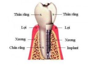 CẤY GHÉP IMPLAN BÁC SĨ ANCấy ghép implant là gì–Ưu điểm Implant?NHA KHOA BS AN 0909899210