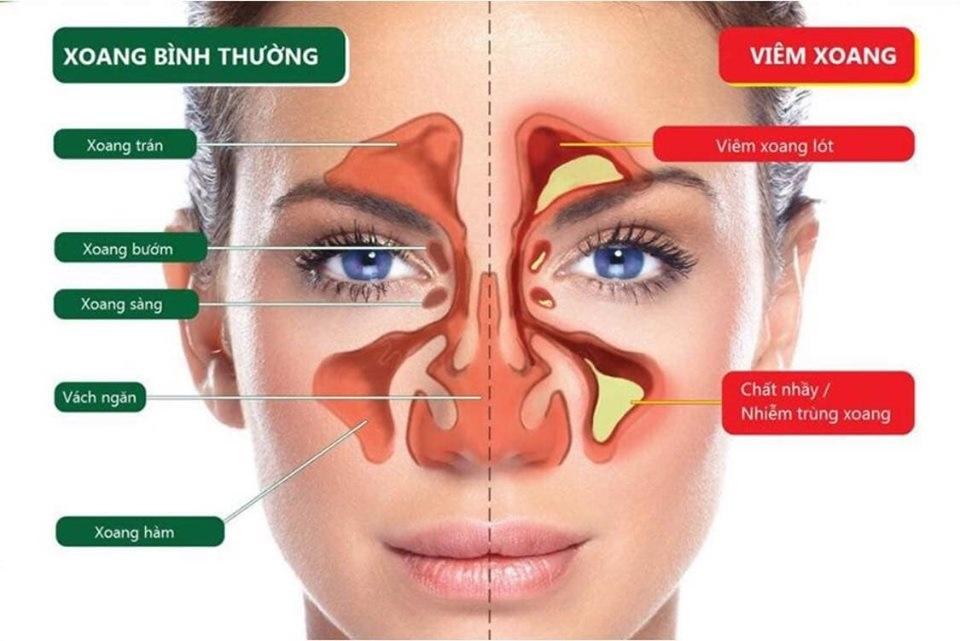 Bệnh viêm xoang viêm mũi dị ứng