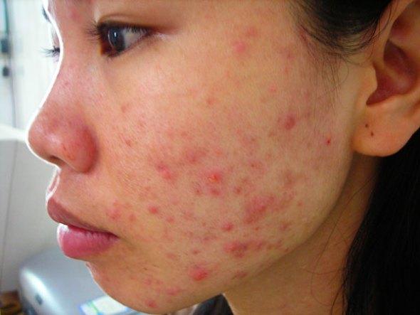 NIACINAMIDE Giúp trị mụn và chăm sóc da sau mụn