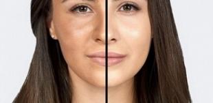 Hình ảnh trước và sau khi sử phủ một lớp phấn phủ Vacci Luxe collection Powder pact