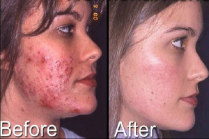 cystic-acne