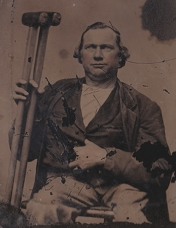 Tintype (detail), man with crutches, 1860s (Nicole Belolan's Collection)