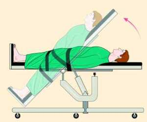 Tilt Table Test