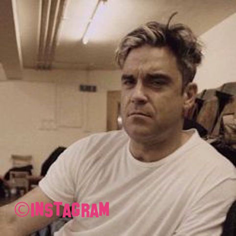 Robbie Williams Admits He's Had Botox And A Chin Tweak