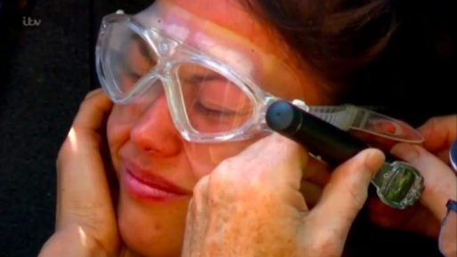 Sam Quek Gets Cockroach Stuck In Her Ear Needing Medical Attention Before Trial Begins On I'm A Celebrity