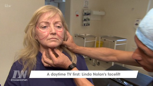 Linda Nolan Undergoes Face Lift On Loose Women For The First