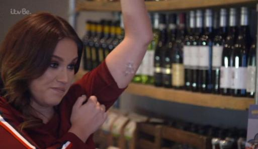 Vicky Pattison Has Got Implant So She Dosent Fall Pregnant Like Friend Ferne McCann