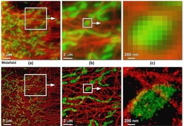 Porównanie mikroskopii szerokiego pola (na górze) z kolejną z nowych technik, które swoje źródło mają w STED - STORM (na dole). /źródło: Allen et al., J Opt (2013)