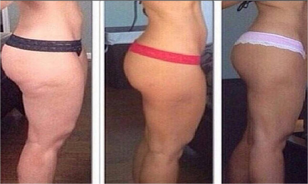 Men are Immune to cellulite, what is the reason for nature's discrimination?