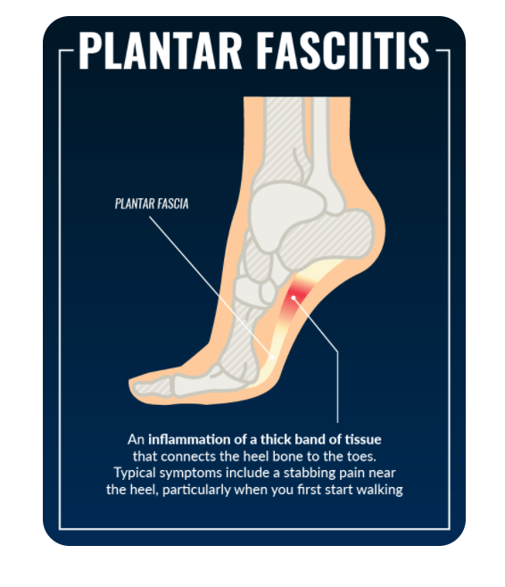 Plantar Fasciitis is the inflammation of the tissues of the foot. It can be extremely painful to walk, especially first thing in the morning.