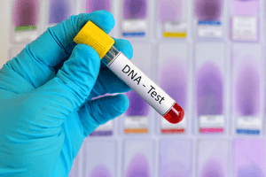 cost of dna test in nigeria