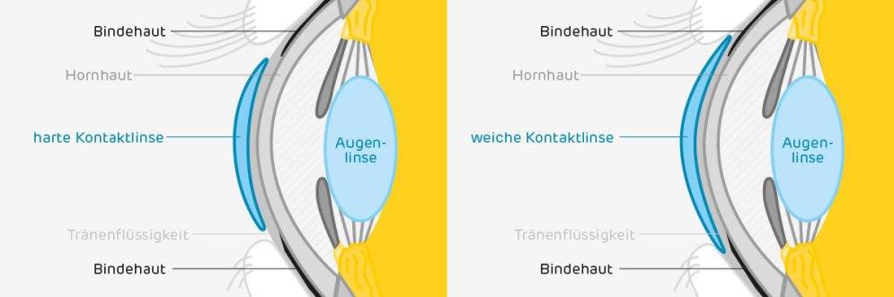 Kontaktlinsenmaterial_Infografik