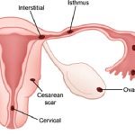 Methotrexate in treatment of ectopic pregnancy