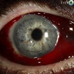 harmful effects of contact lenses