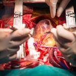 Cardiothoracic surgeons in Nigeria