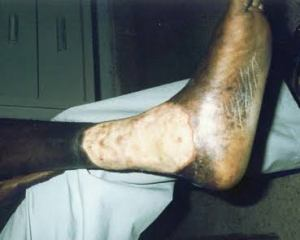 Why does sickle cell disease cause leg ulcers