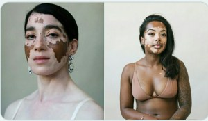 Can VITILIGO be sexually transmitted?